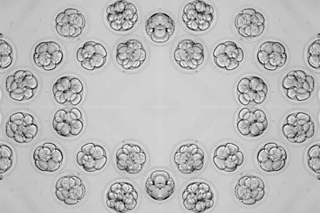 This is a picture of many embryos, like what you would see when you transfer an embryo of your own. They usually give you a picture of your embryo.